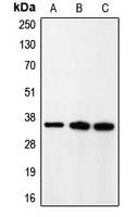 Western blot analysis of p35 expression in rat brain (A); HeLa (B); A431 (C) whole cell lysates.