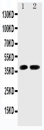Cdk6 antibody Western blot. Lane 1: Rat Testis Tissue Lysate. Lane 2: Rat Lung Tissue Lysate.