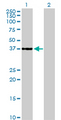 Western blot of CDK6 expression in transfected 293T cell line by CDK6 monoclonal antibody (M01), clone 8H4.