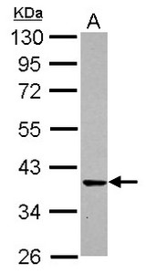 Sample (30 ug of whole cell lysate) A: IMR32 10% SDS PAGE CDK6 antibody diluted at 1:1000