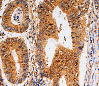 Immunohistochemistry of paraffin-embedded human colon cancer tissue.