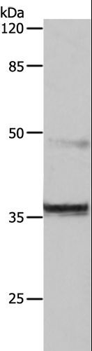Western blot analysis of Jurkat cell, using CDK6 Polyclonal Antibody at dilution of 1:150.