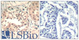 Immunohistochemistry of paraffin-embedded human breast carcinoma tissue using CDK6 (Phospho-Tyr13) antibody (left) or the same antibody preincubated with blocking peptide (right).