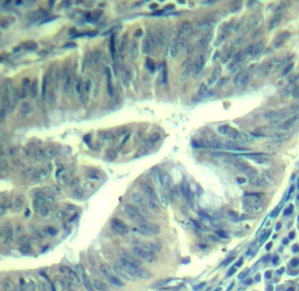 Immunohistochemical analysis of paraffin-embedded human colon carcinoma tissue.