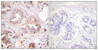 Immunohistochemistry analysis of paraffin-embedded human breast carcinoma tissue, using CDK7 Antibody. The picture on the right is blocked with the synthesized peptide.