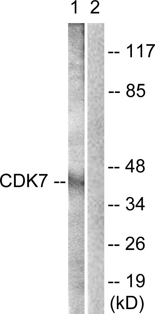 Western blot analysis of lysates from Raw264.7 cells, treated with Calyculin A 50ng/ml 30', using CDK7 Antibody. The lane on the right is blocked with the synthesized peptide.