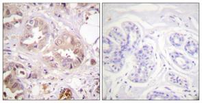 IHC of paraffin-embedded human breast carcinoma tissue, using CDK7 (Ab-170) Antibody. The picture on the right is treated with the synthesized peptide.