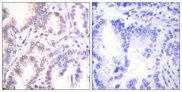 Immunohistochemistry analysis of paraffin-embedded human lung carcinoma tissue, using CDK7 Antibody. The picture on the right is blocked with the synthesized peptide.