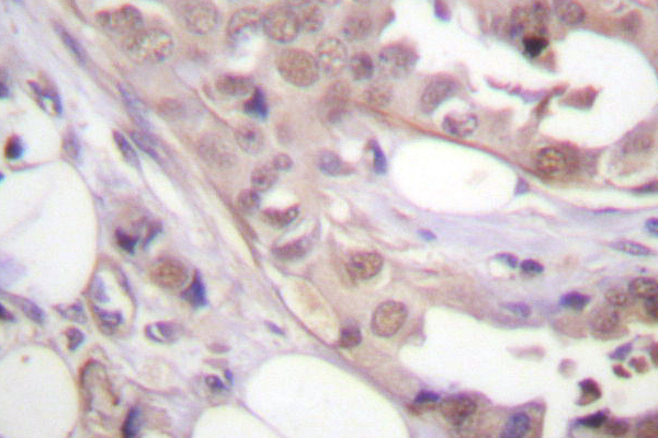 IHC of CDK7 (N166) pAb in paraffin-embedded human breast tissue.