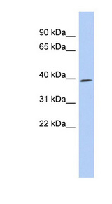 CDK7 antibody LS-C112378 Western blot of THP-1 cell lysate.  This image was taken for the unconjugated form of this product. Other forms have not been tested.