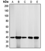 Western blot analysis of CDK7 expression in K562 (A); Jurkat (B); HeLa (C); NIH3T3 (D); HT29 (E) whole cell lysates.