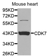 Western blot analysis of extracts of mouse heart, using CDK7 antibody at 1:1000 dilution. The secondary antibody used was an HRP Goat Anti-Rabbit IgG (H+L) at 1:10000 dilution. Lysates were loaded 25ug per lane and 3% nonfat dry milk in TBST was used for blocking.