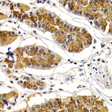 Immunohistochemistry of paraffin-embedded human stomach using CDK7 antibodyat dilution of 1:200 (40x lens).