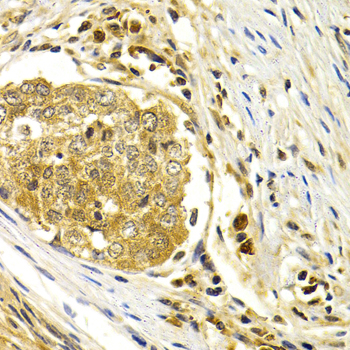 Immunohistochemistry of paraffin-embedded human esophageal cancer using CDK7 antibodyat dilution of 1:200 (40x lens).