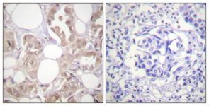 IHC of paraffin-embedded human breast carcinoma, using CDK7 (Phospho-Thr170) Antibody. The sample on the right was incubated with synthetic peptide.