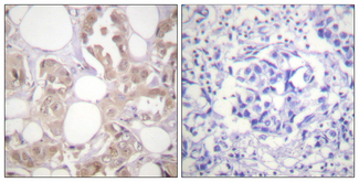 Immunohistochemistry analysis of paraffin-embedded human breast carcinoma, using CDK7 (Phospho-Thr170) Antibody. The picture on the right is blocked with the phospho peptide.