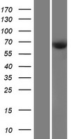 CDKAL1 Protein - Western validation with an anti-DDK antibody * L: Control HEK293 lysate R: Over-expression lysate