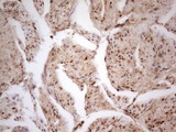 Immunohistochemical staining of paraffin-embedded Carcinoma of Human prostate tissue using anti-CDKL1 mouse monoclonal antibody.  heat-induced epitope retrieval by 1 mM EDTA in 10mM Tris, pH8.5, 120C for 3min)