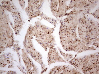 CDKL1 Antibody - Immunohistochemical staining of paraffin-embedded Carcinoma of Human prostate tissue using anti-CDKL1 mouse monoclonal antibody.  heat-induced epitope retrieval by 1 mM EDTA in 10mM Tris, pH8.5, 120C for 3min)