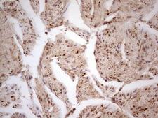 CDKL1 Antibody - IHC of paraffin-embedded Carcinoma of Human prostate tissue using anti-CDKL1 mouse monoclonal antibody. (heat-induced epitope retrieval by 1 mM EDTA in 10mM Tris, pH8.5, 120°C for 3min).