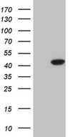 CDKL1 Antibody - HEK293T cells were transfected with the pCMV6-ENTRY control. (Left lane) or pCMV6-ENTRY CDKL1. (Right lane) cDNA for 48 hrs and lysed. Equivalent amounts of cell lysates. (5 ug per lane) were separated by SDS-PAGE and immunoblotted with anti-CDKL1.