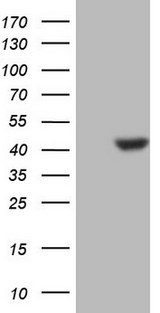 CDKL1 Antibody - HEK293T cells were transfected with the pCMV6-ENTRY control (Left lane) or pCMV6-ENTRY CDKL1 (Right lane) cDNA for 48 hrs and lysed. Equivalent amounts of cell lysates (5 ug per lane) were separated by SDS-PAGE and immunoblotted with anti-CDKL1.