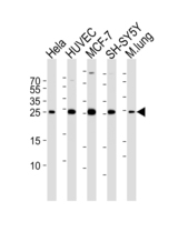 Western blot of lysates from HeLa, HUVEC, MCF-7, SH-SY5Y cell line and mouse lung tissue lysate (from left to right) with CDKN1A Antibody. Antibody was diluted at 1:1000 at each lane. A goat anti-rabbit IgG H&L (HRP) at 1:5000 dilution was used as the secondary antibody. Lysates at 35 ug per lane.