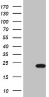 HEK293T cells were transfected with the pCMV6-ENTRY control (Left lane) or pCMV6-ENTRY CDKN1A (Right lane) cDNA for 48 hrs and lysed. Equivalent amounts of cell lysates (5 ug per lane) were separated by SDS-PAGE and immunoblotted with anti-CDKN1A (1:2000).