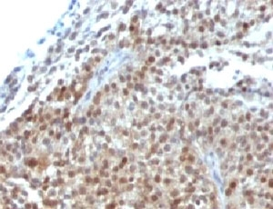 Formalin-fixed, paraffin-embedded human bladder carcinoma stained with p21 antibody (CIP1/823 + DCS-60.2).  This image was taken for the unmodified form of this product. Other forms have not been tested.