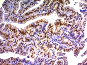 Formalin-fixed, paraffin-embedded human colon carcinoma stained with p21 antibody (DCS-60.2).  This image was taken for the unmodified form of this product. Other forms have not been tested.