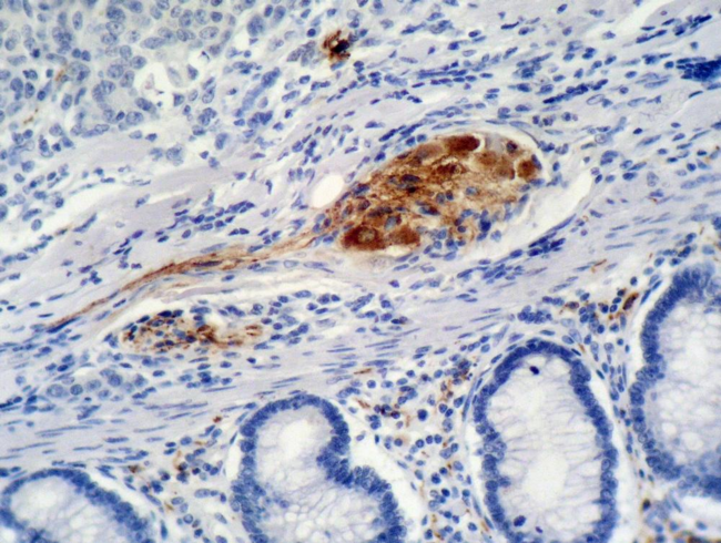Immunohistochemistry staining of colon carcinoma (paraffin-embedded sections) with anti-p21 (WA-1).