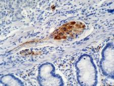 CDKN1A / WAF1 / p21 Antibody - Immunohistochemistry staining of colon carcinoma (paraffin-embedded sections) with anti-p21 (WA-1).