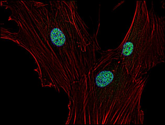 Immunofluorescence staining of p21 in human primary fibroblasts using anti-p21 (WA-1; green). Actin cytoskeleton decorated by phalloidin (red) and cell nuclei stained with DAPI (blue).