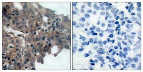 IHC of paraffin-embedded human breast carcinoma, using p21 Cip1 (Phospho-Thr145) Antibody. The picture on the right is treated with the synthesized peptide.