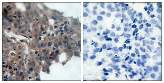 Immunohistochemistry analysis of paraffin-embedded human breast carcinoma, using p21 Cip1 (Phospho-Thr145) Antibody. The picture on the right is blocked with the phospho peptide.