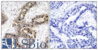 Immunohistochemistry of paraffin-embedded human breast carcinoma tissue using p21Cip1 (Phospho-Thr145) antibody (left) or the same antibody preincubated with blocking peptide (right).