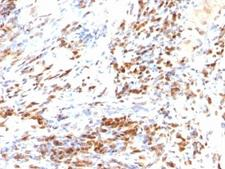 CDKN1B / p27 Kip1 Antibody - Formalin-fixed, paraffin-embedded human colon carcinoma stained with p27 antibody (DCS-72.F6 + KIP1/769).  This image was taken for the unmodified form of this product. Other forms have not been tested.