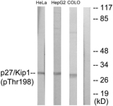 CDKN1B / p27 Kip1 Antibody - Western blot analysis of lysates from HeLa cells, HepG2 cells and COLO cells, using p27 Kip1 (Phospho-Thr198) Antibody. The lane on the right is blocked with the phospho peptide.