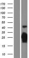 CDKN1B / p27 Kip1 Protein - Western validation with an anti-DDK antibody * L: Control HEK293 lysate R: Over-expression lysate
