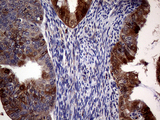 Immunohistochemical staining of paraffin-embedded Adenocarcinoma of Human endometrium tissue using anti-CDKN2A mouse monoclonal antibody. (Heat-induced epitope retrieval by 1mM EDTA in 10mM Tris buffer. (pH8.5) at 120°C for 3 min. (1:2000)