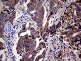 Immunohistochemical staining of paraffin-embedded Adenocarcinoma of Human breast tissue tissue using anti-CDKN2A mouse monoclonal antibody. (Heat-induced epitope retrieval by 1mM EDTA in 10mM Tris buffer. (pH8.5) at 120°C for 3 min. (1:2000)