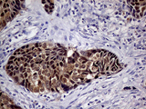 Immunohistochemical staining of paraffin-embedded Carcinoma of Human lung tissue using anti-CDKN2A mouse monoclonal antibody. (Heat-induced epitope retrieval by 1mM EDTA in 10mM Tris buffer. (pH8.5) at 120°C for 3 min. (1:500)