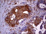 Immunohistochemical staining of paraffin-embedded Adenocarcinoma of Human ovary tissue using anti-CDKN2A mouse monoclonal antibody. (Heat-induced epitope retrieval by 1mM EDTA in 10mM Tris buffer. (pH8.5) at 120°C for 3 min. (1:500)