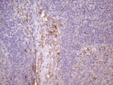 Immunohistochemical staining of paraffin-embedded Human lymph node tissue within the normal limits using anti-CDKN2A mouse monoclonal antibody. (Heat-induced epitope retrieval by Tris-EDTA, pH8.0)(1:150)