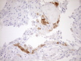 Immunohistochemical staining of paraffin-embedded Carcinoma of Human thyroid tissue using anti-CDKN2A mouse monoclonal antibody. (Heat-induced epitope retrieval by 1mM EDTA in 10mM Tris buffer. (pH8.5) at 120°C for 3 min. (1:150)