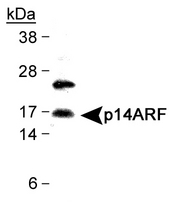 Detection of CDKN2A isoform 4 in HeLa cell lysates with antibody LS-C33994.  This image was taken for the unconjugated form of this product. Other forms have not been tested.
