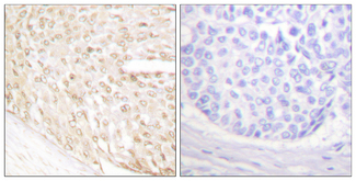 Immunohistochemistry analysis of paraffin-embedded human breast carcinoma tissue, using p18 INK Antibody. The picture on the right is blocked with the synthesized peptide.