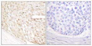 IHC of paraffin-embedded human breast carcinoma tissue, using p18 INK Antibody. The picture on the right is treated with the synthesized peptide.