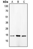 Western blot analysis of p18 INK4c expression in HeLa (A); NIH3T3 (B); COLO205 (C) whole cell lysates.