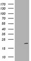 HEK293T cells were transfected with the pCMV6-ENTRY control (Left lane) or pCMV6-ENTRY CDKN2C (Right lane) cDNA for 48 hrs and lysed. Equivalent amounts of cell lysates (5 ug per lane) were separated by SDS-PAGE and immunoblotted with anti-CDKN2C.